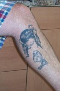 Baldwin's Hairy Leg